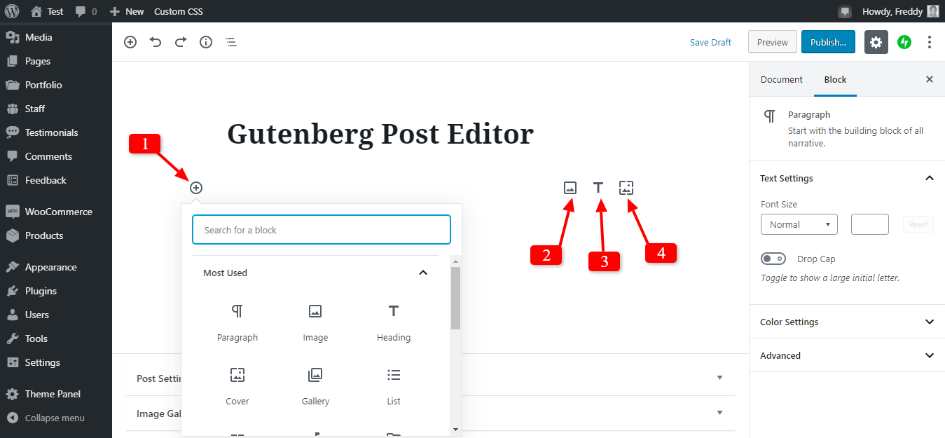 Gutenberg bölmələrinin bloklanması üçün yeni seçimlər