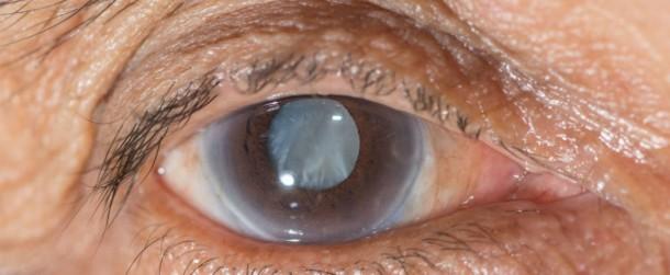 Las gotas para los ojos son la alternativa a la cirugía de cataratas 2