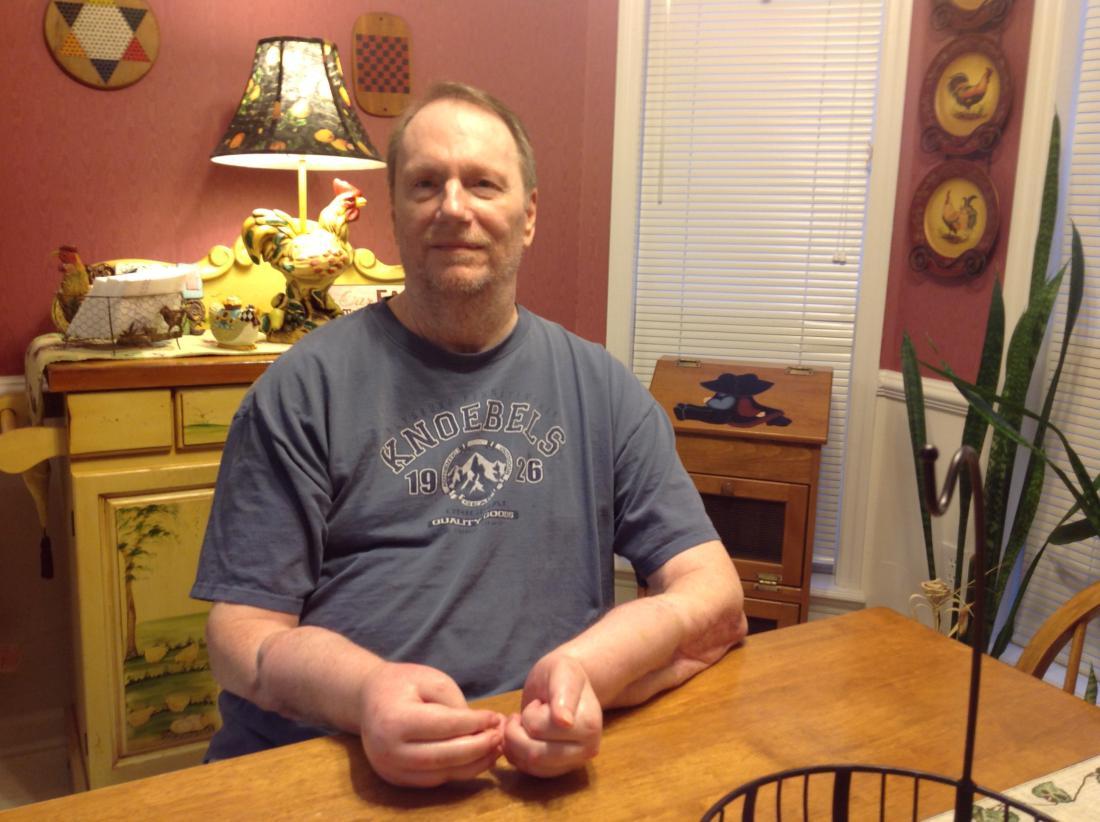 El primer estadounidense en recibir un trasplante de doble mano revela que no tuvo éxito