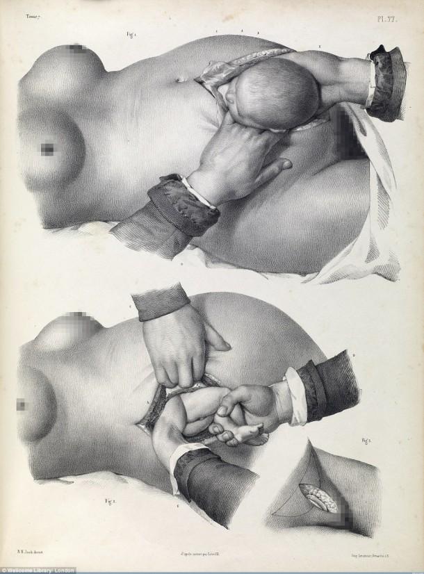 Así es como se realizaron las cirugías en el siglo XVII cuando aún no se había inventado la anestesia 4