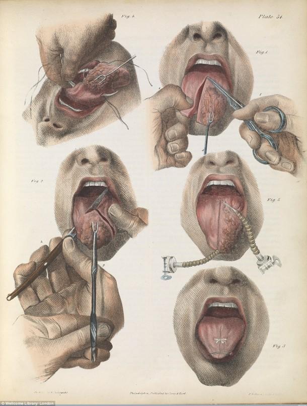 Así es como se realizaron las cirugías en el siglo XVII cuando todavía no se había inventado la anestesia 2