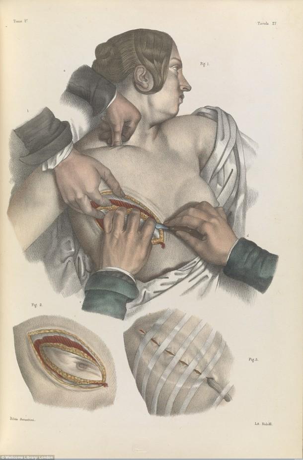 Así es como se realizaron las cirugías en el siglo XVII cuando todavía no se había inventado la anestesia 5