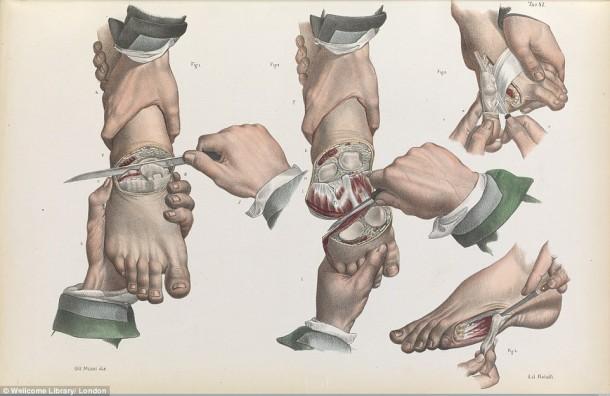 Así es como se realizaron las cirugías en el siglo XVII cuando todavía no se había inventado la anestesia 3