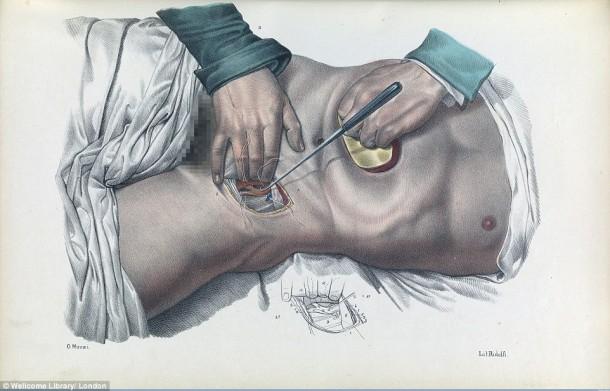 Así es como se realizaron las cirugías en el siglo XVII cuando todavía no se había inventado la anestesia 7
