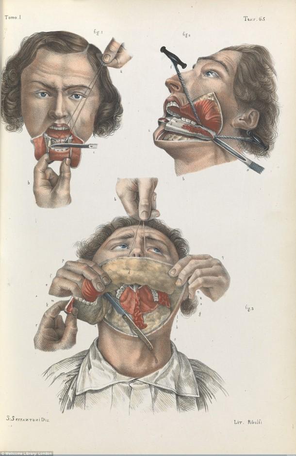 Así es como se realizaron las cirugías en el siglo XVII cuando todavía no se había inventado la anestesia 6