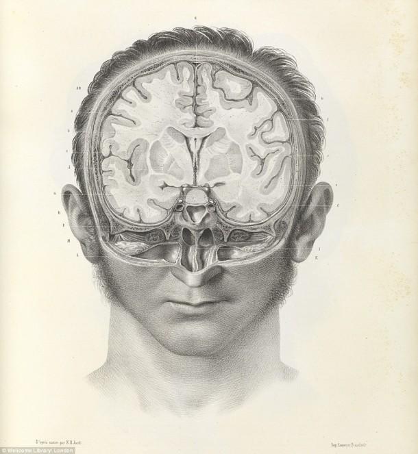 Así es como se realizaron las cirugías en el siglo XVII cuando todavía no se había inventado la anestesia 8