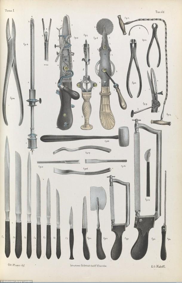 Así es como se realizaron las cirugías en el siglo XVII cuando todavía no se había inventado la anestesia 9