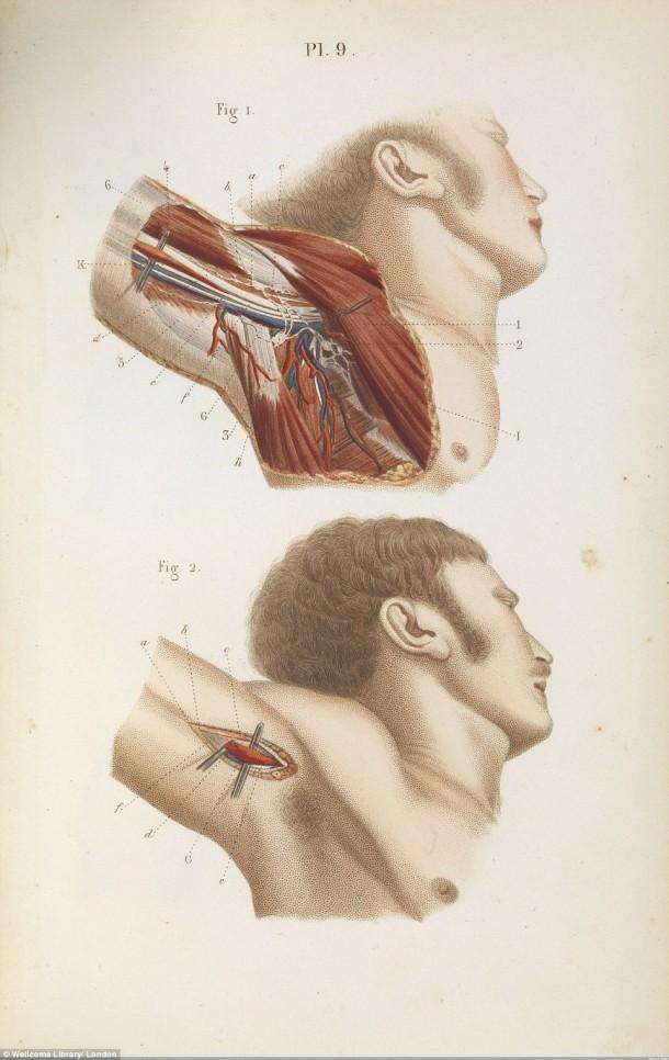 Así es como se realizaron las cirugías en el siglo XVII cuando todavía no se había inventado la anestesia 13