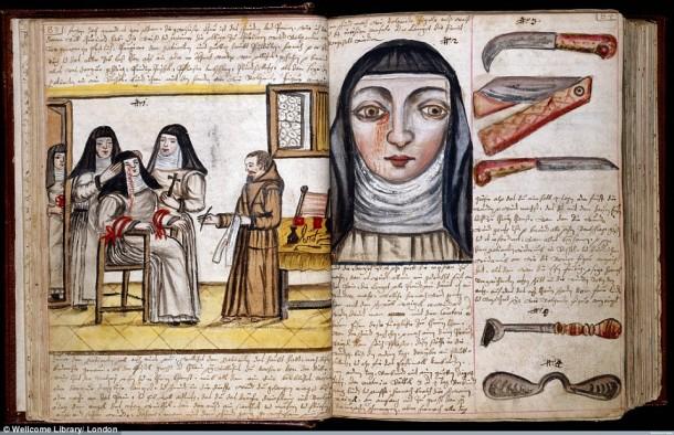 Así es como se realizaron las cirugías en el siglo XVII cuando todavía no se había inventado la anestesia 10