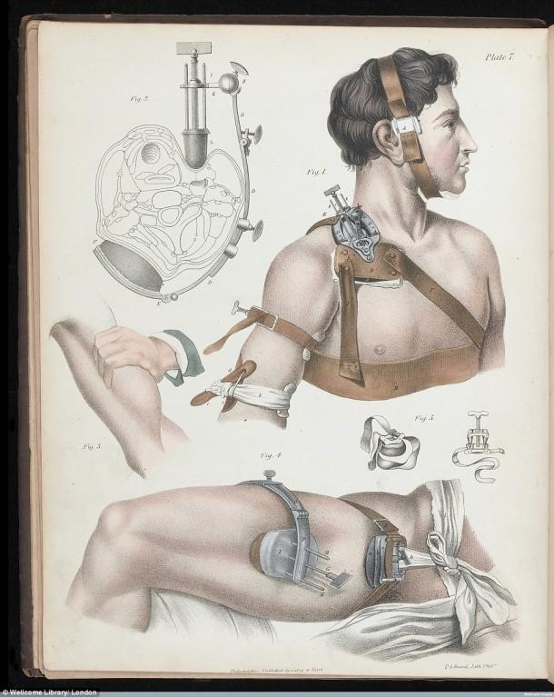Así es como se realizaron las cirugías en el siglo XVII cuando todavía no se había inventado la anestesia 11