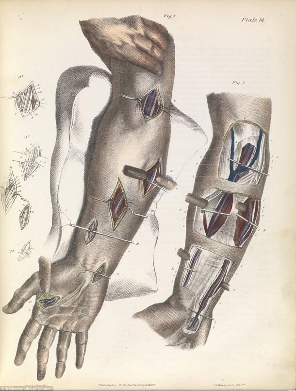 Así es como se realizaron las cirugías en el siglo XVII cuando todavía no se había inventado la anestesia 12