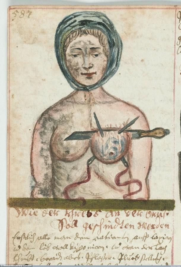 Así es como se realizaron las cirugías en el siglo XVII cuando todavía no se había inventado la anestesia 14