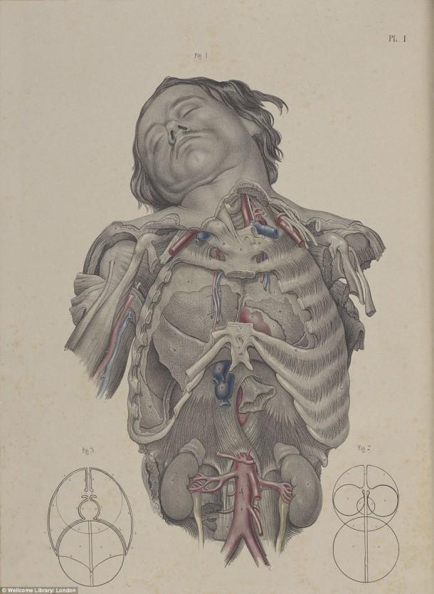Así es como se realizaron las cirugías en el siglo XVII cuando todavía no se había inventado la anestesia 16