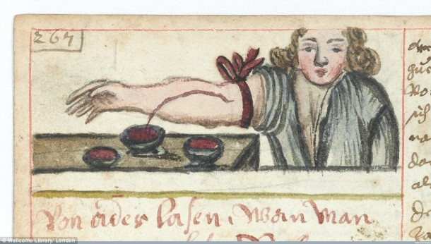 Así es como se realizaron las cirugías en el siglo XVII cuando todavía no se había inventado la anestesia 15