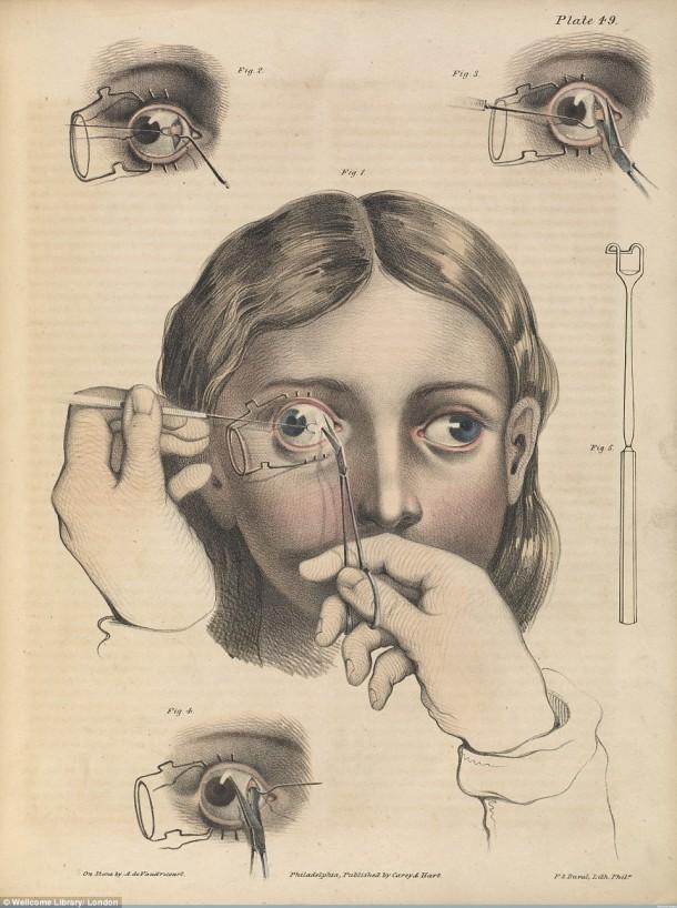 Así es como se realizaron las cirugías en el siglo XVII cuando aún no se había inventado la anestesia 1