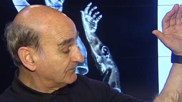 artista-implantes-oreja-en-brazo-ZsX
