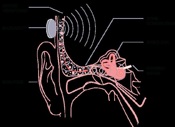 BATBAND - Escucha música sin comprometer tus oídos 2