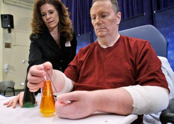Primer estadounidense en recibir trasplante de doble mano revela que no tuvo éxito_Imagen 1