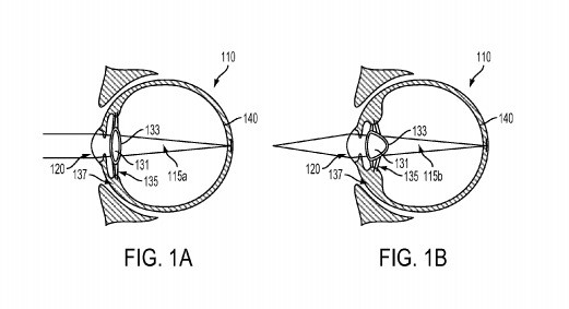 Google supera a Smart Lens de Sony, dispositivo inteligente patentado inyectado en el globo ocular_Imagen 1_Ingeniería maravillosa
