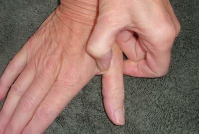 dedos índices de presión5